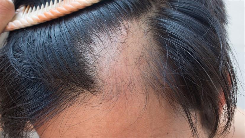 Các dấu hiệu và triệu chứng rụng tóc