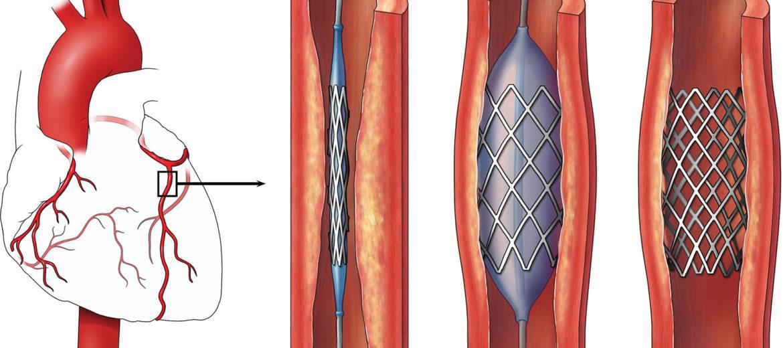 đặt stent điều trị bệnh tim