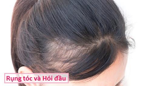 Rụng tóc - Hói đầu: Triệu chứng, nguyên nhân và cách điều trị
