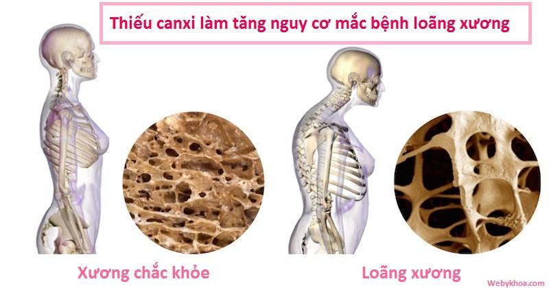 Thiếu canxi làm tăng nguy cơ mắc bệnh loãng xương